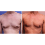 What is Gynecomastia? Why does it happen?